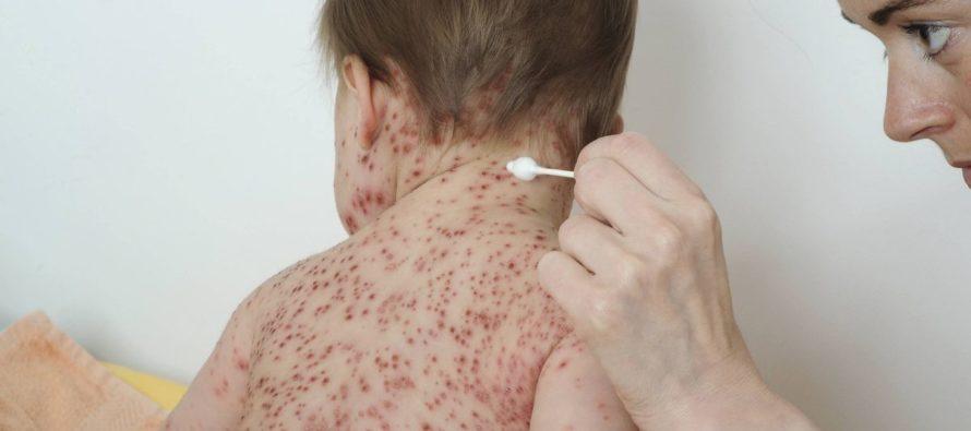 Alerte Santé : attention, la varicelle est de retour en Île-de-France